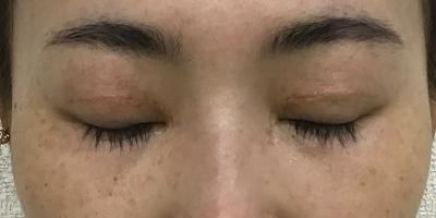術後1ヶ月閉眼