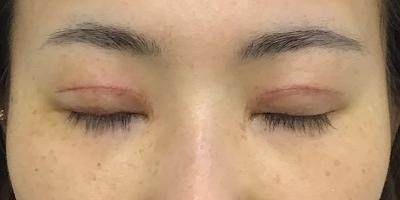 術後1週間閉眼