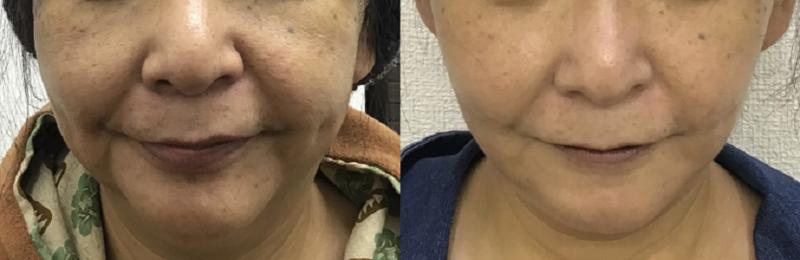 ミニリフト+頬顎脂肪吸引