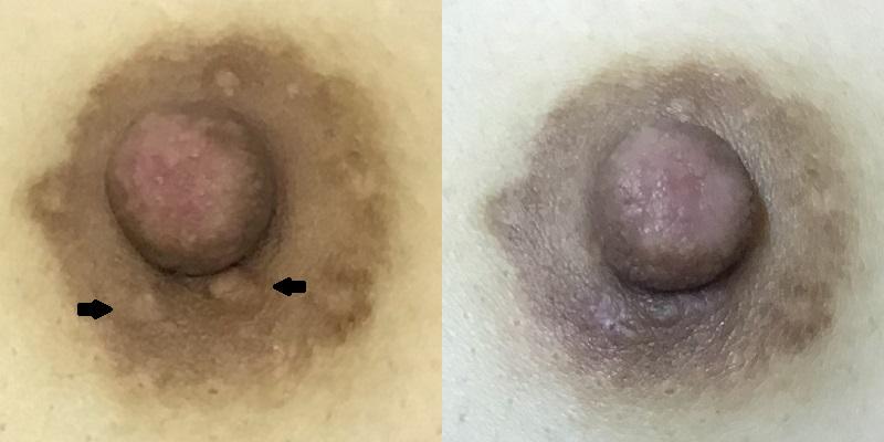 モントゴメリー腺除去