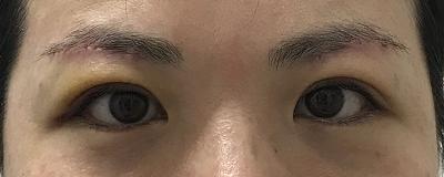 眉下切開術後1週間