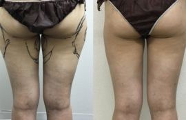 大腿の脂肪吸引
