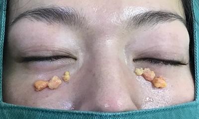 切除した眼窩脂肪