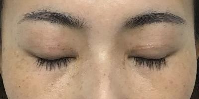 術後3ヶ月閉眼