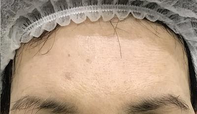 施術後1週間