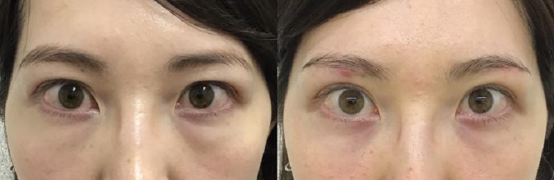 眉下切開+経結膜脱脂