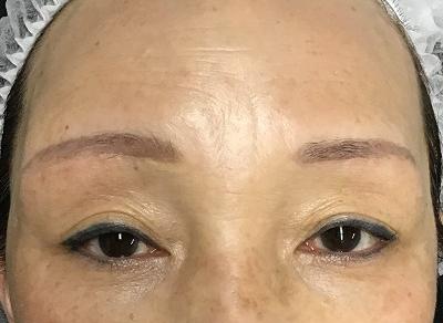 術後5ヶ月目