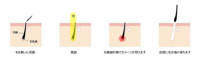 脱毛効果と毛周期の関係