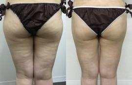 大腿外側の脂肪吸引