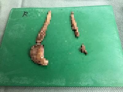 切除した副皮および片側小陰唇