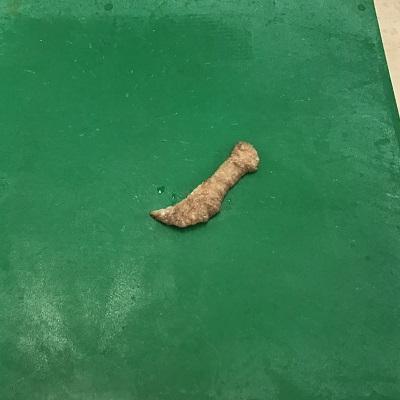 切除したモントゴメリー腺