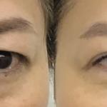 眉下切開で目尻側の皮膚のたるみを解消