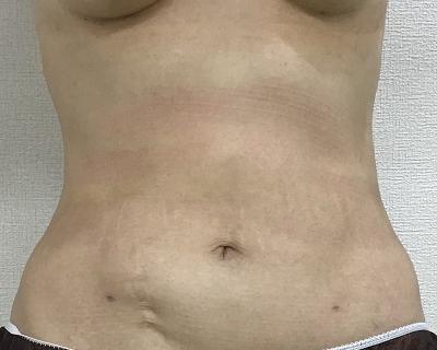術後1ヶ月