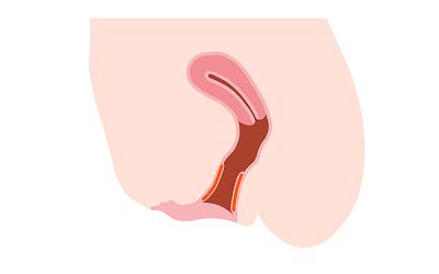 膣壁へのPRP注入