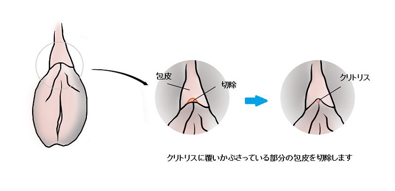 クリトリス包茎の方法