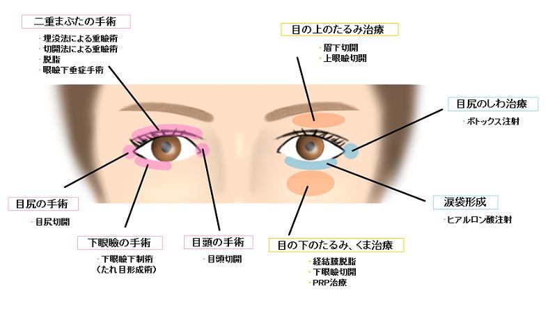 目の手術一覧