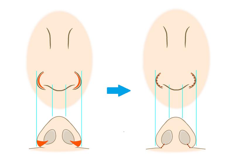 鼻翼縮小術外側法