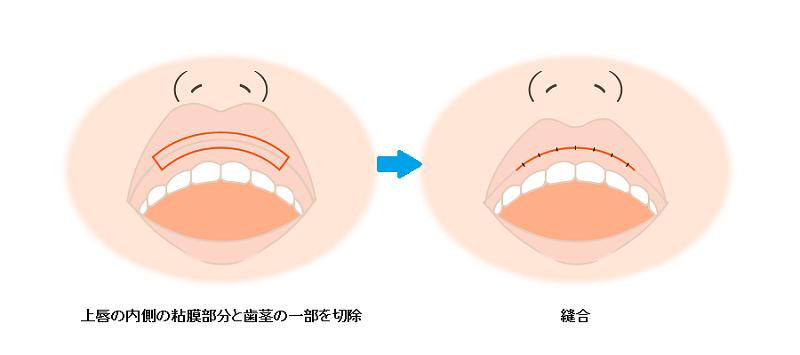 粘膜切除術の方法