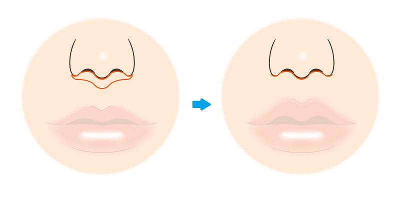 人中短縮術の方法