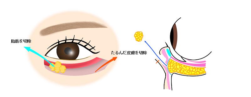 下眼瞼除皮+脱脂