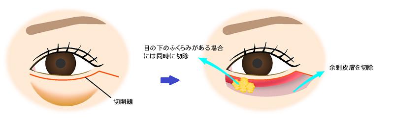 下眼瞼切開
