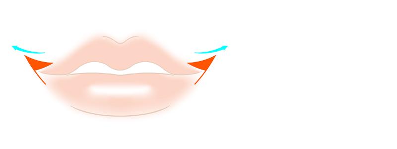 口角拳上術の方法