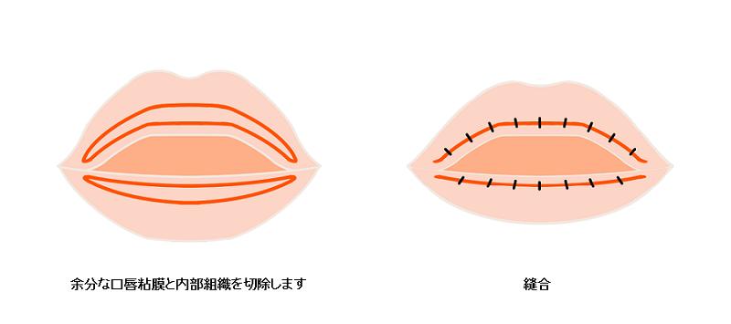 口唇縮小術