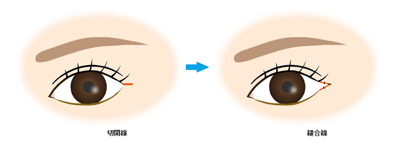 目尻切開(単純法)