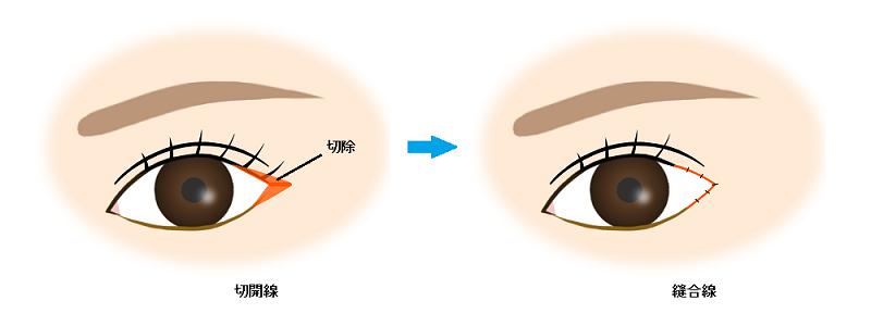 目尻切開(VY法)