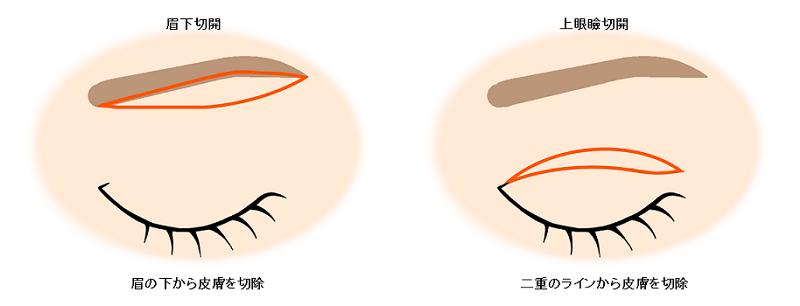 眉下切開と上眼瞼切開の切除位置