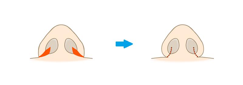 鼻翼縮小術内側法