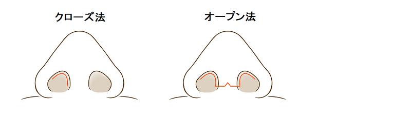 鼻の切開線