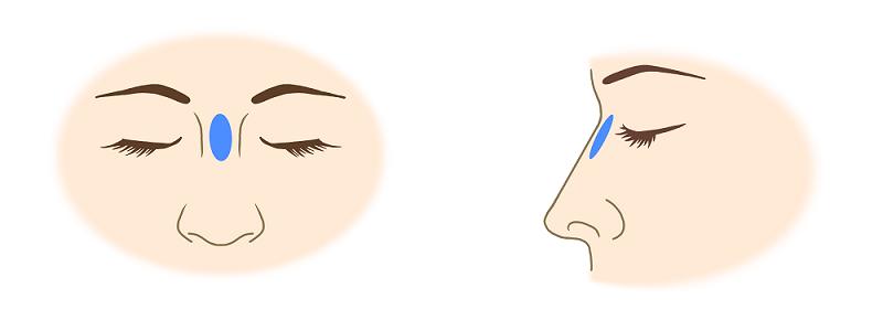 ヒアルロン酸による隆鼻術