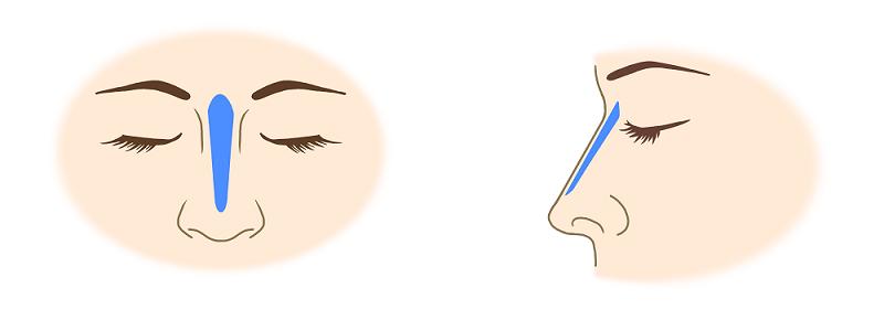 プロテーゼによる隆鼻術