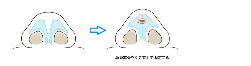 鼻翼軟骨が横に開いているタイプ