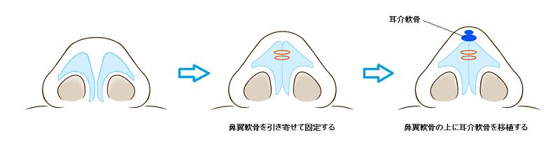 鼻尖縮小+耳介軟骨移植