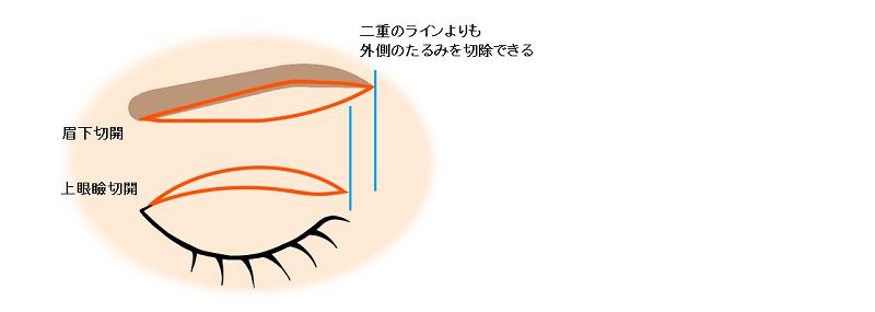 眉下切開と上眼瞼切開の切除範囲の違い