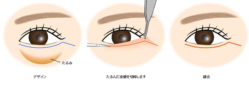 下眼瞼除皮