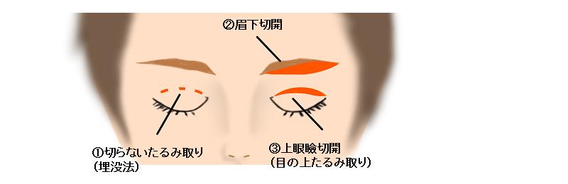 目の上のたるみ治療