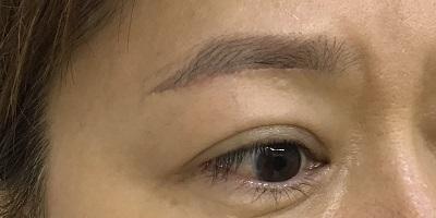 眉下切開の傷跡