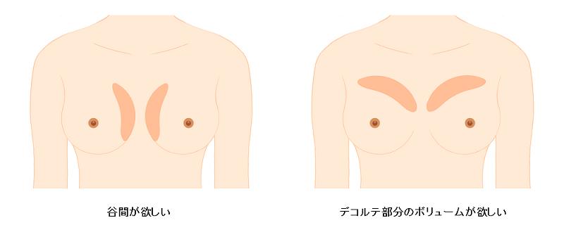 脂肪注入のデザイン1