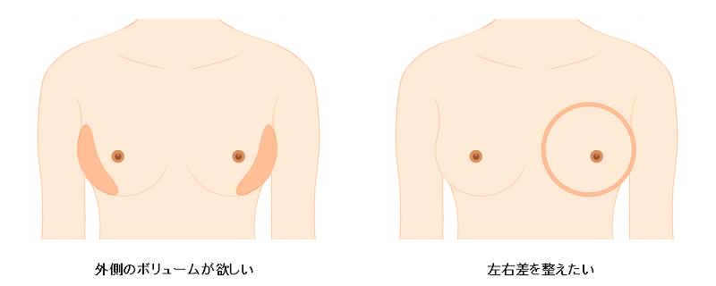 脂肪注入のデザイン2