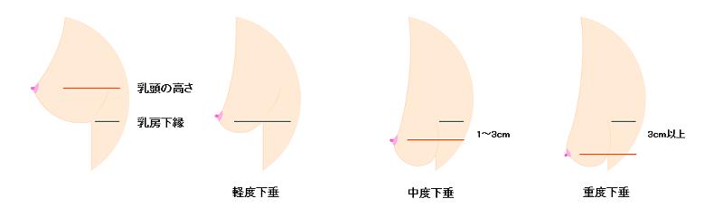 乳房下垂の分類