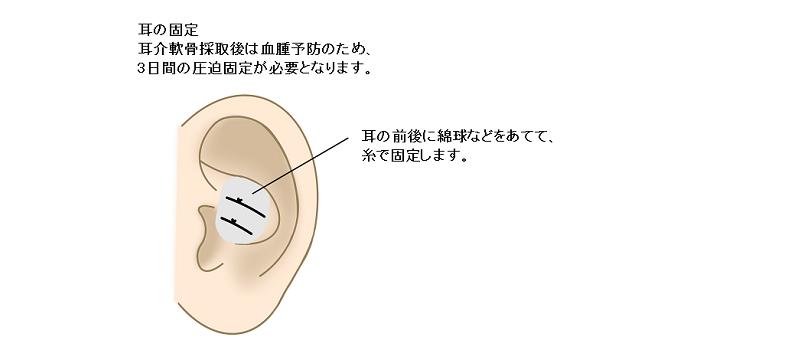 採取した耳介軟骨の固定