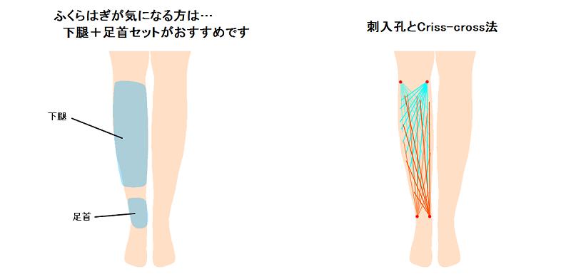 下腿の脂肪吸引
