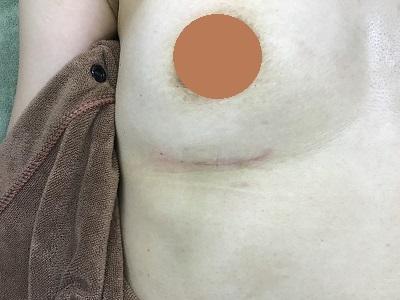 術後の傷跡