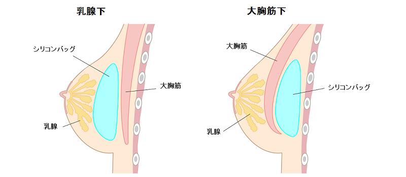 乳腺下と大胸筋下