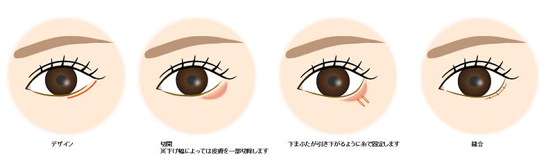 下眼瞼下制術(たれ目形成)