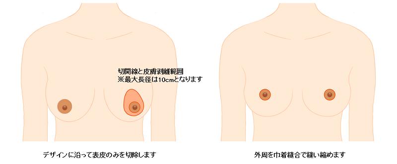 乳房吊り上げ術
