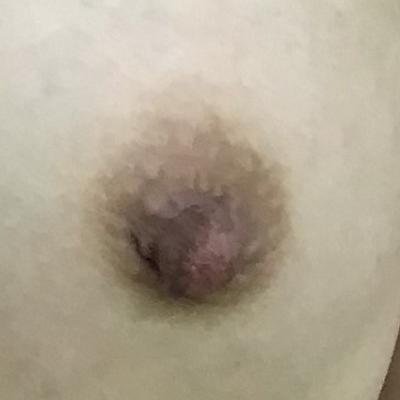 乳頭縮小術術後